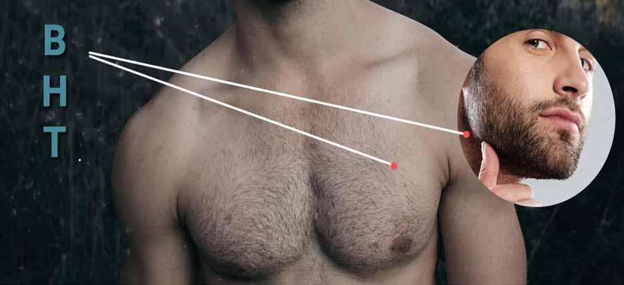 کاشت مو به روش BHT   کاشت مو سر از مو های سینه و ریش