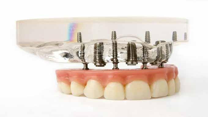 دندان مصنوعی با پایه ایمپلنت
