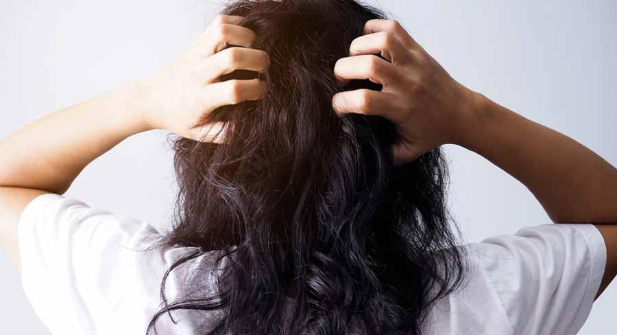 علت چربی موی سر