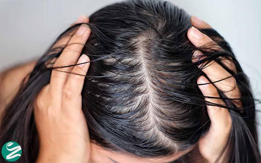 چطور از چرب شدن موها جلوگیری کنیم؟