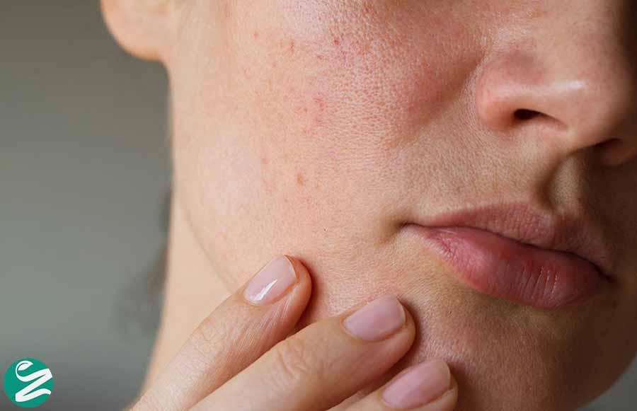 7 روش سریع و خانگی کوچک کردن منافذ باز پوست