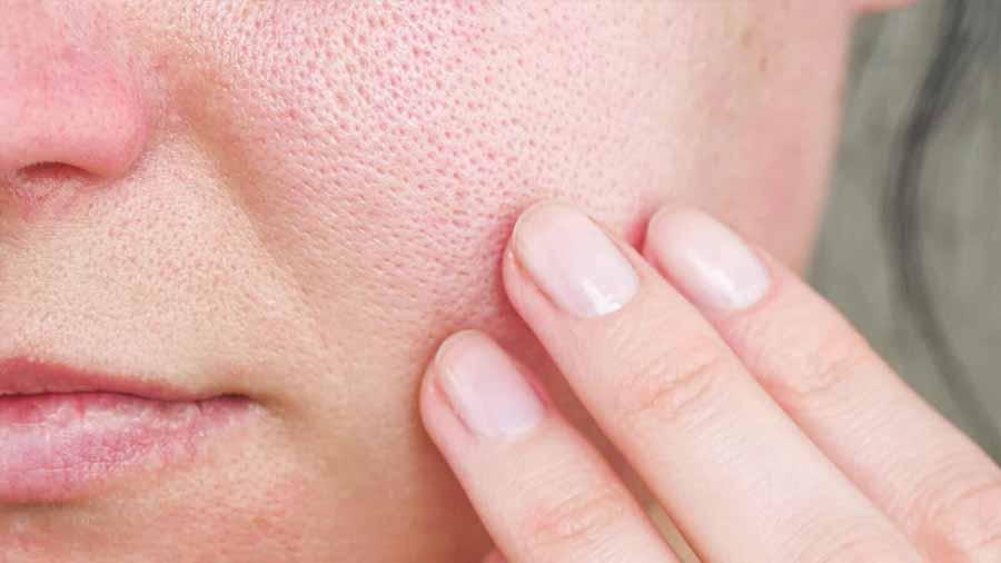 علت باز شدن منافذ پوست