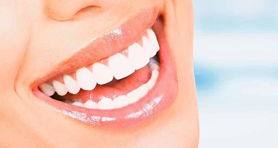 7 نکته طلایی برای داشتن لبخند جذاب