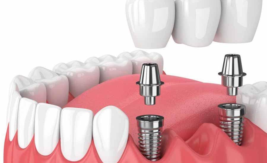 ایمپلنت دندان چیست و چند جلسه طول میکشد؟