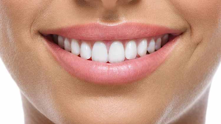 دکتر کامپوزیت دندان تهران