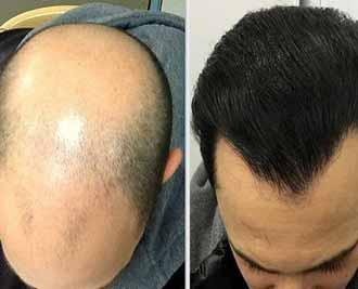 معرفی انواع روش های کاشت مو